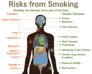 Health Effects of Smoking